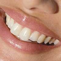 Зубы во сне к чему снятся